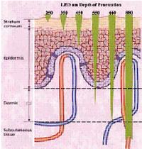 DPLセラピーシステム